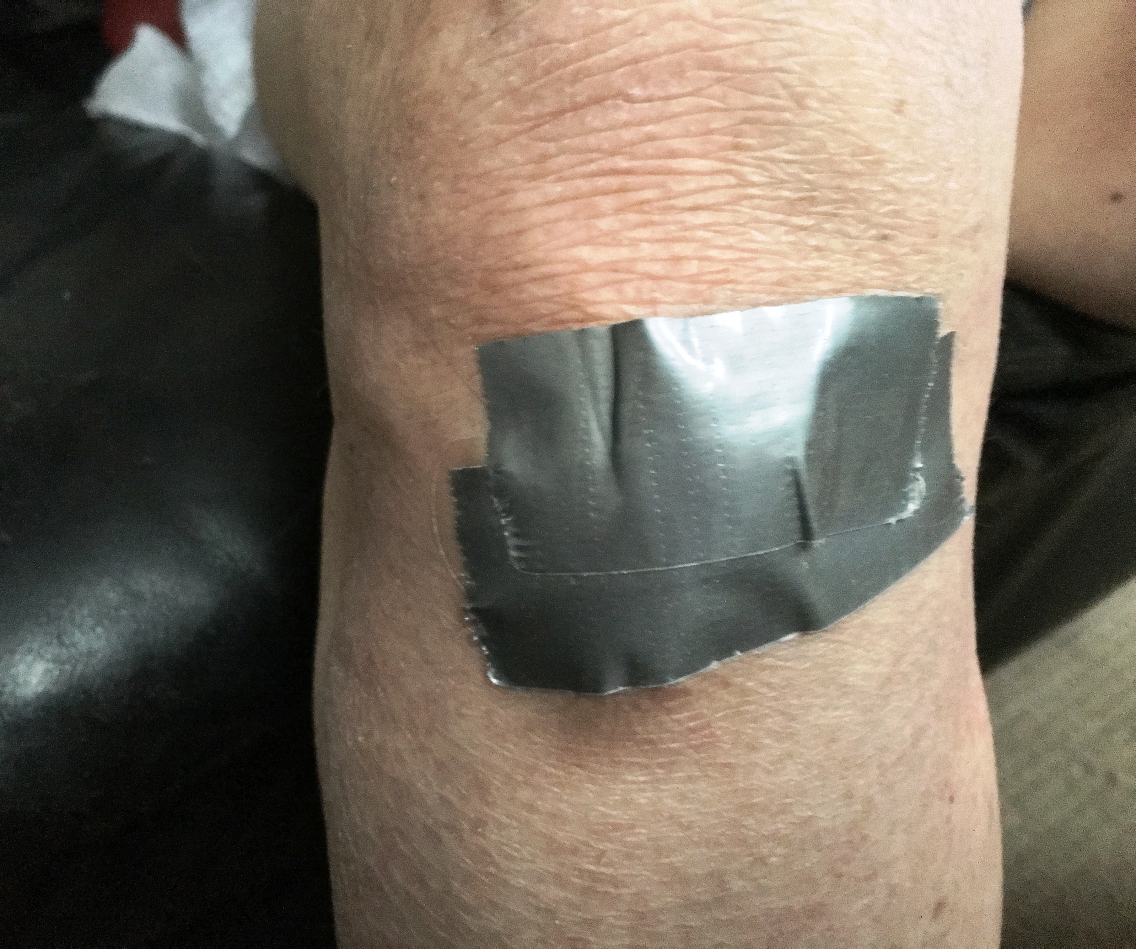 I covered my knee with duct tape.JPG